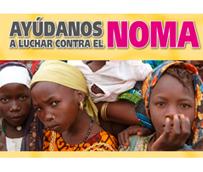 RIU organiza una campaña para luchar contra el Noma, enfermedad conocida como 'el ladrón de sonrisas'